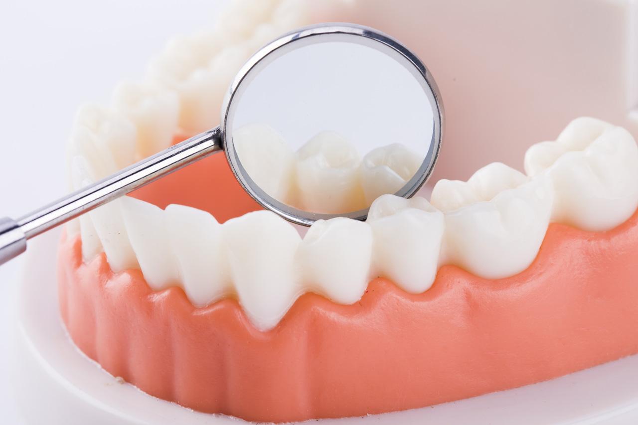 合肥佳冠口腔医院嵌体是什么