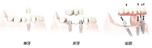 合肥佳冠口腔医院种植牙可以做磁共振吗