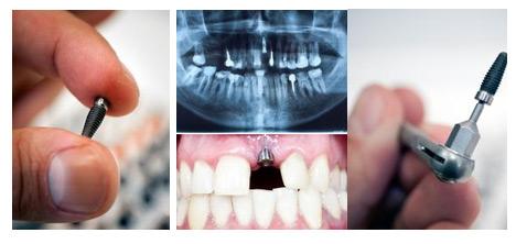 合肥佳冠口腔医院口腔内的金属对核磁共振有影响吗