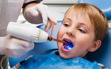 合肥口腔医院几点挂号 你会选择定期口腔
