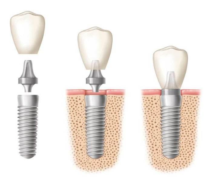 合肥佳冠口腔医院牙齿缺失如何解决