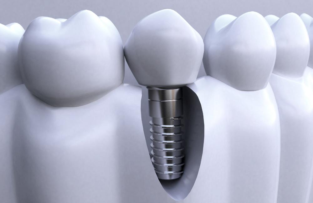 合肥佳冠口腔医院种植牙与真牙的区别是