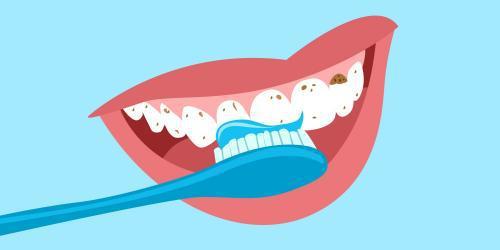 合肥佳冠口腔医院如何正确选择牙膏